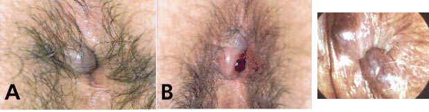 Trombose hemorroidária externa