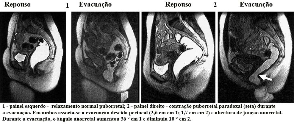 Defecografia RM1
