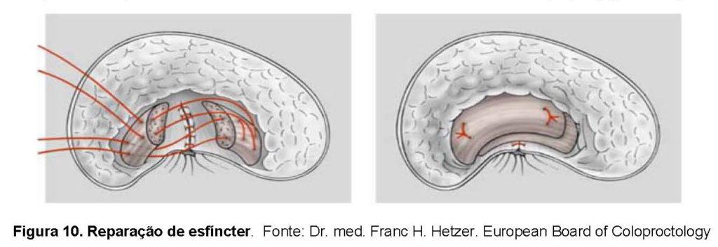Reparação do esfíncter